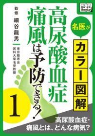 紀伊國屋書店BookWebで買える「名医がカラー図解! 高尿酸血症・痛風は予防できる! (1 高尿酸血症・痛風とは」の画像です。価格は108円になります。