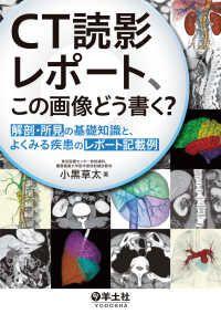 CT読影レポート、この画像どう書く? 解剖・所見の基礎知識と、 ― よくみる疾患のレポート記載例 Kinoppy電子書籍ランキング